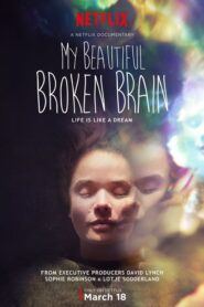 My Beautiful Broken Brain